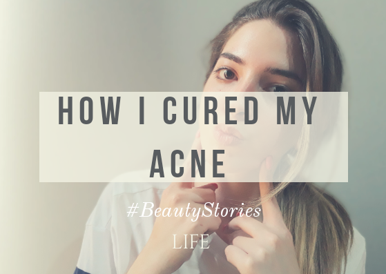 #BeautyStories | How I cured my acne
